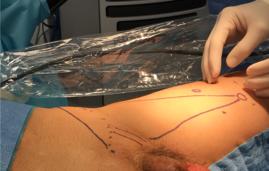 Marcando los puntos de referencia al inicio de la cirugía.